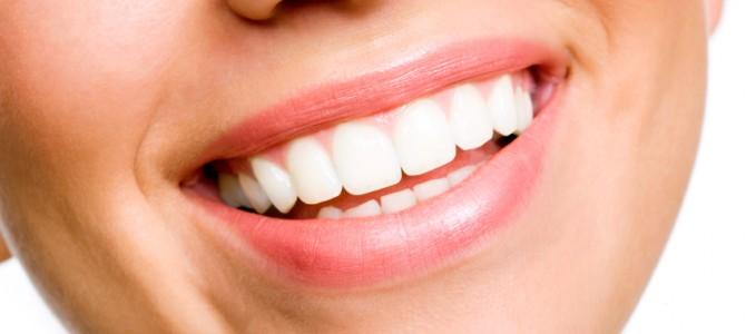 Dantų balinimo metodai